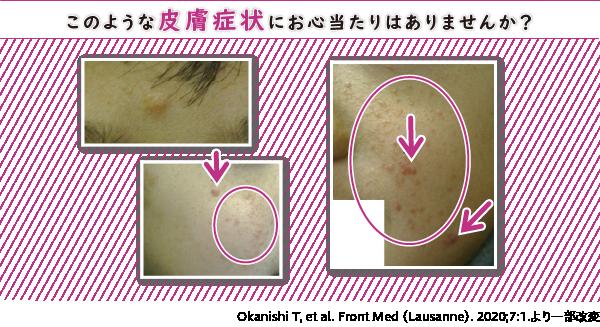 このような皮膚症状にお心当たりはありませんか?