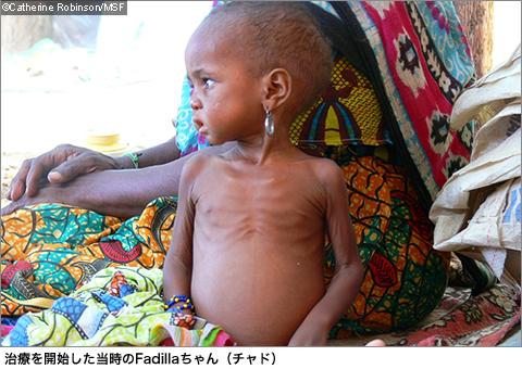2>長期的対策を! アフリカ・乳...