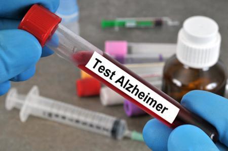 認知症の予兆捉える血液バイオマーカー発見