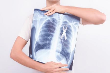 非喫煙女性の肺がん危険因子とは