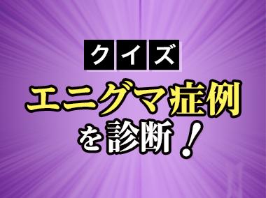 クイズ エニグマ症例を診断!