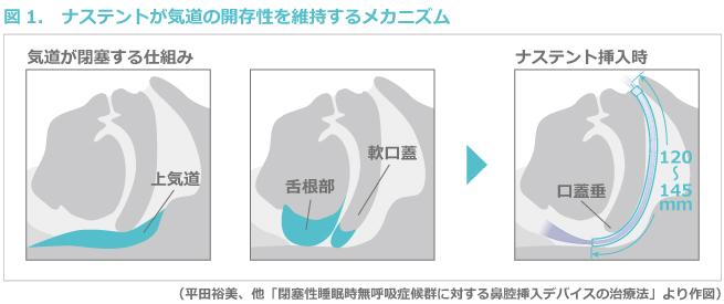 図1. ナステントが気道の開存性を維持するメカニズム